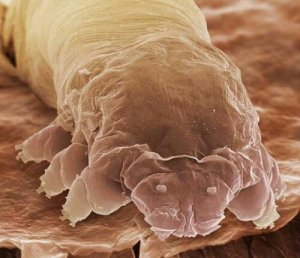 A Close-Up View of A Lash Mite Photo Courtesy of Google Search